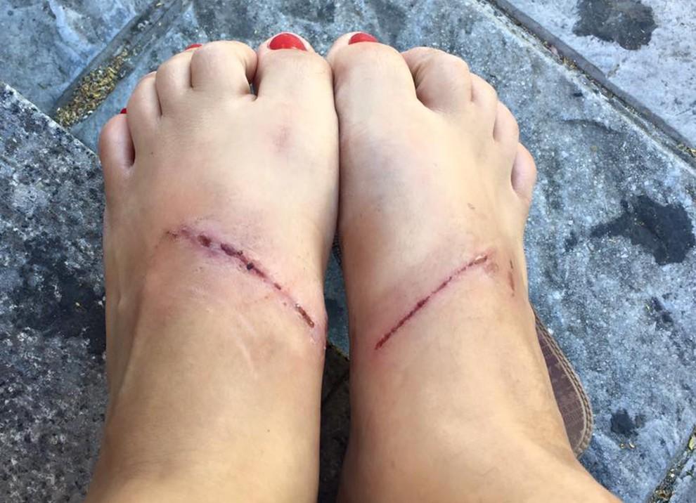 Els peus ferits de la noia