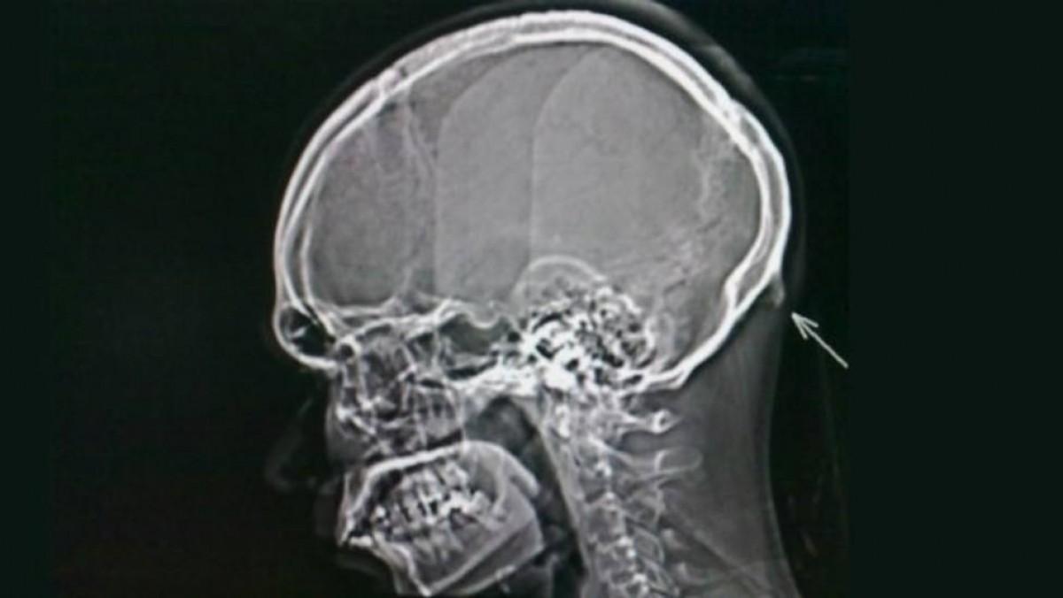 Imatge d'una radiografia del nou os al crani.
