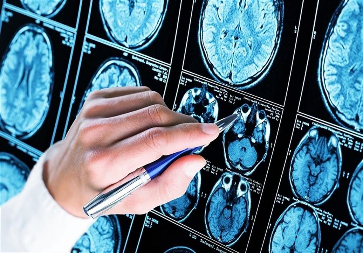 Estudi de l'Alzheimer