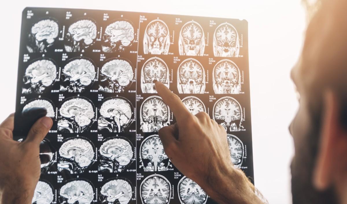 Imatge per ressonància magnètica d'un cervell.