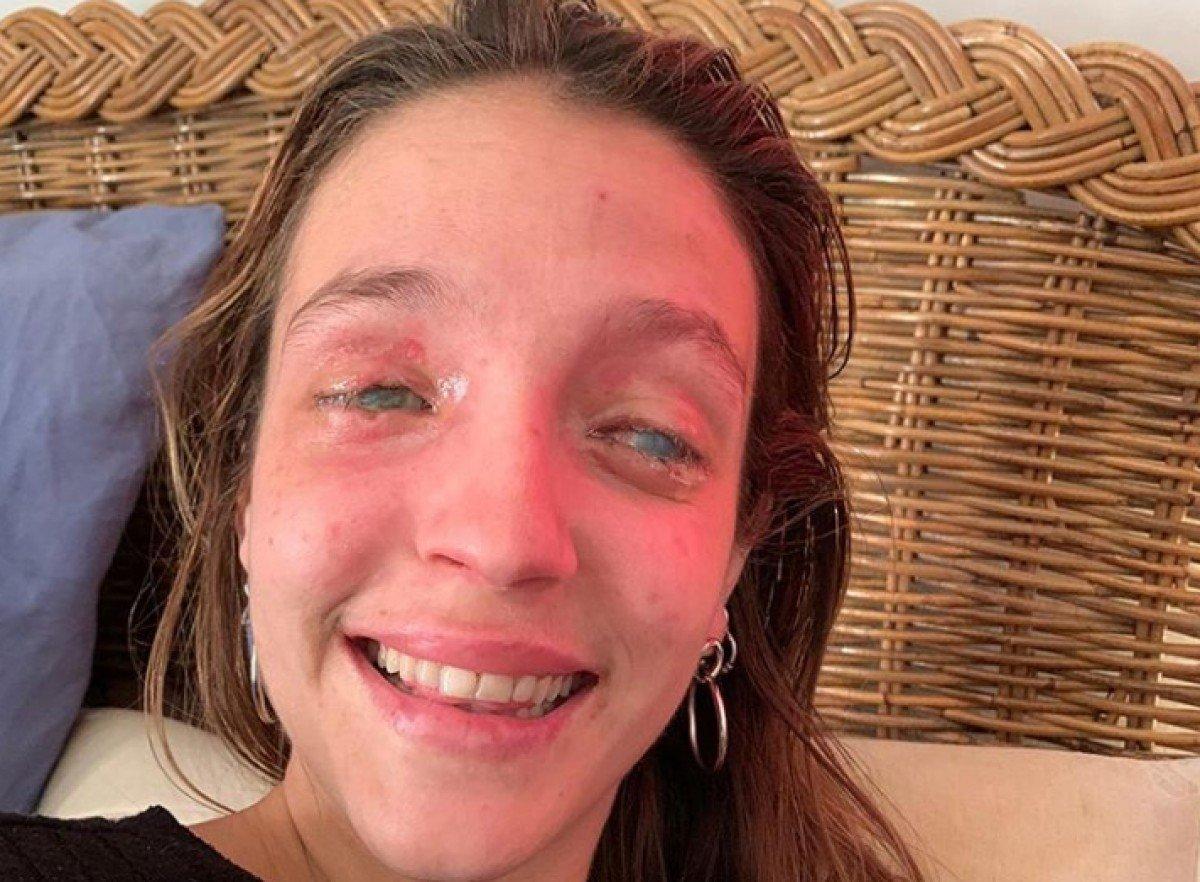 La Marta obrint els ulls per primera vegada després de l'accident.