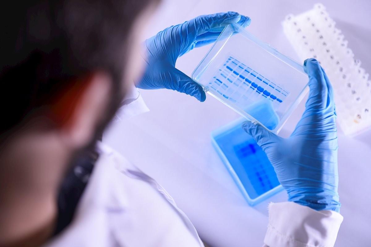 La vacuna d'Oxford mostra uns resultats esperançadors