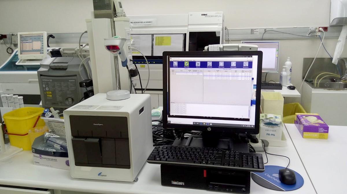 Sistema de detecció de la Covid-19 per antígens