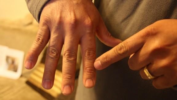 Fer-se espetegar els dits no prova artrosi, tal i com s'havia assegurat